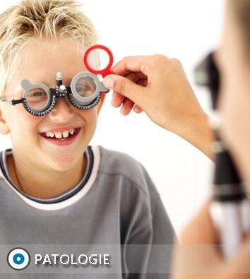 patologie occhio